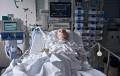 Beatmeter Patient mit Tracheostoma, Perfusoren und EKG auf einer Intensivstation